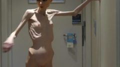 Anorexia Christin Showing Her Bones & Slim Skeleton